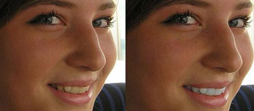 WHITEN TEETH TO IMPROVE A SMILE IN PHOTOSHOP CS4
